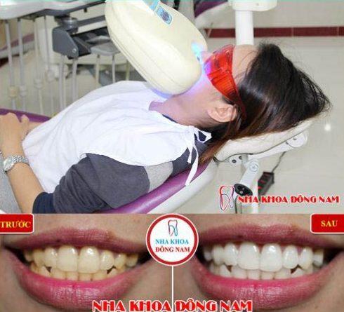 Bí quyết tẩy ố vàng trên răng cực nhanh 7