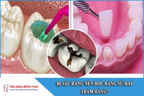 bị sâu răng nên bọc răng sứ hay trám răng