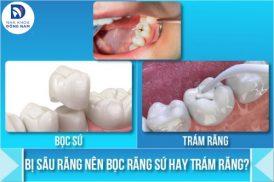 bị sâu răng nên bọc răng sứ hay trám răng 5