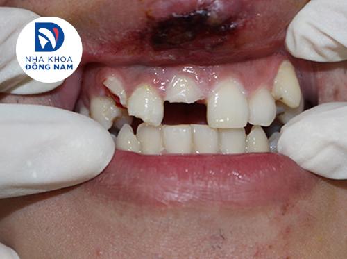 bọc răng sứ cho răng bị chấn động mạnh