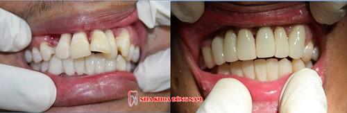 bọc răng sứ cho răng bị chìa thì có hết hô không 1