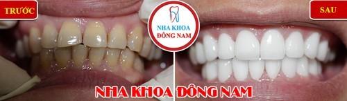 bọc răng sứ cho răng bị chìa thì có hết hô không 2