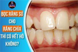 bọc răng sứ cho răng bị chìa thì có hết hô không