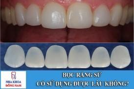 bọc răng sứ có thể sữ dụng được bao lâu
