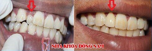 bọc răng sứ hiện nay giá bao nhiêu 2