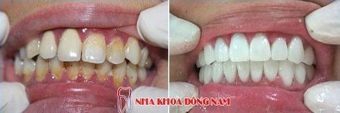 bọc răng sứ hiện nay giá bao nhiêu 3