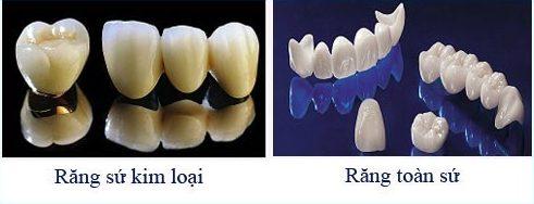 bọc răng sứ hiện nay giá bao nhiêu 4