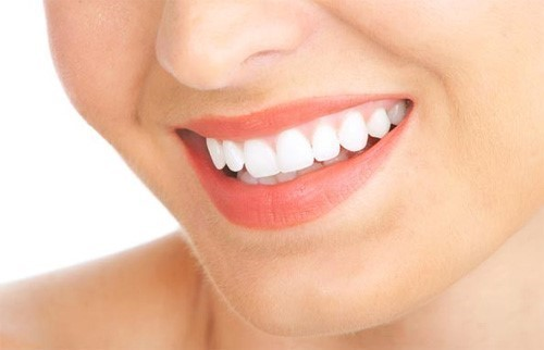 bọc răng sứ hiện nay giá bao nhiêu 6