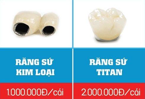 bọc răng sứ kim loại có tốt không 1