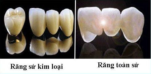 bọc răng sứ kim loại có tốt không 2