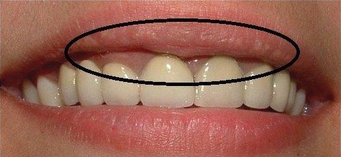đen viền nướu khi sử dụng răng sứ kim loại