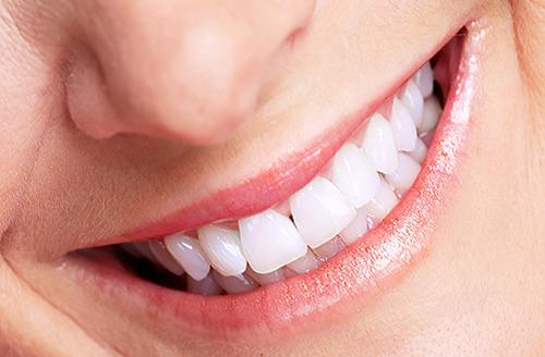 bọc răng sứ mang lại cho bạn nụ cười thêm trắng sáng tự nhiên