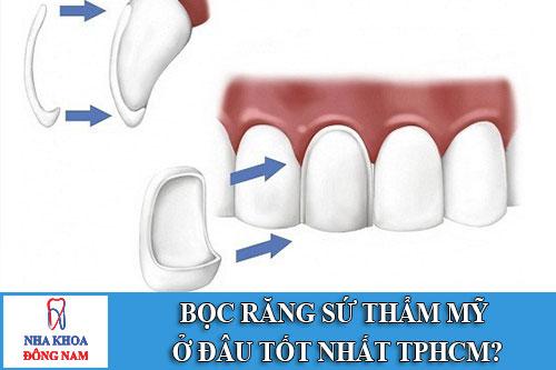 bọc răng sứ thẩm mỹ ở đâu tốt nhất tphcm