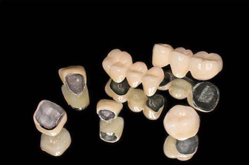 Bọc răng sứ titan giá bao nhiêu 1