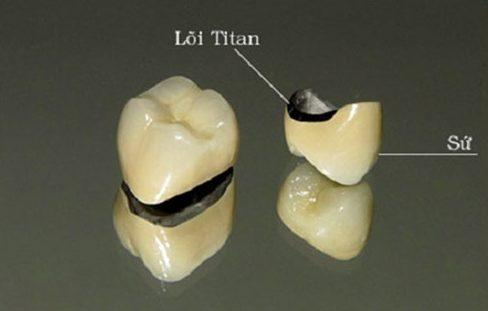 Bọc răng sứ titan giá bao nhiêu 3