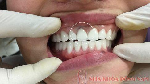Bọc răng sứ titan giá bao nhiêu 5