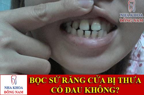 bọc sứ cho răng cửa bị thưa có đau không -1
