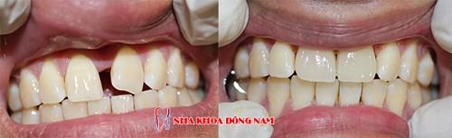 bọc sứ cho răng của bị thưa