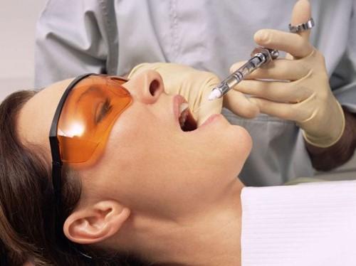 gây tê trước khi tiến hành mài răng bọc sứ