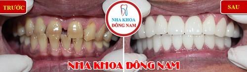 bọc sứ cho 2 hàm răng thưa và nhiễm kháng sinh