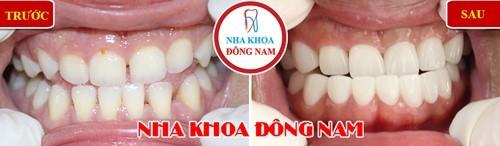 bọc sứ cho 2 hàm răng bị móm và thưa nhiều