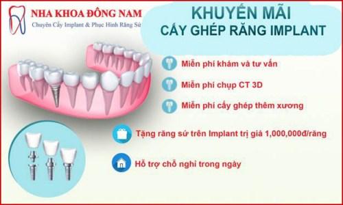 Các bước phẫu thuật cấy ghép răng Implant 12