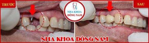 Các bước phẫu thuật cấy ghép răng Implant 13