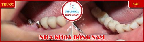 Các bước phẫu thuật cấy ghép răng Implant 16