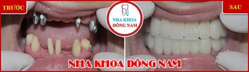Các bước phẫu thuật cấy ghép răng Implant 1