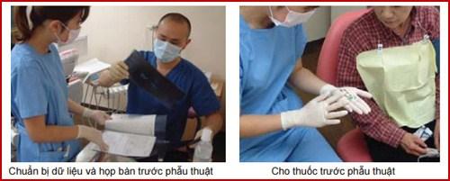 Các bước phẫu thuật cấy ghép răng Implant