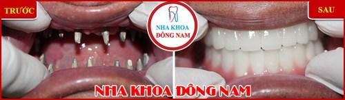 Các bước phẫu thuật cấy ghép răng Implant 20