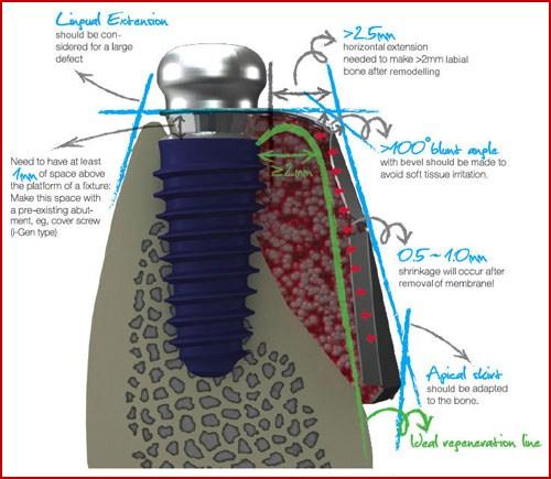 Các bước phẫu thuật cấy ghép răng Implant 4