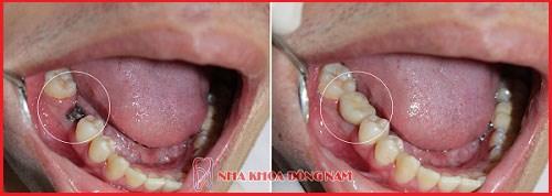 Các bước phẫu thuật cấy ghép răng Implant 5