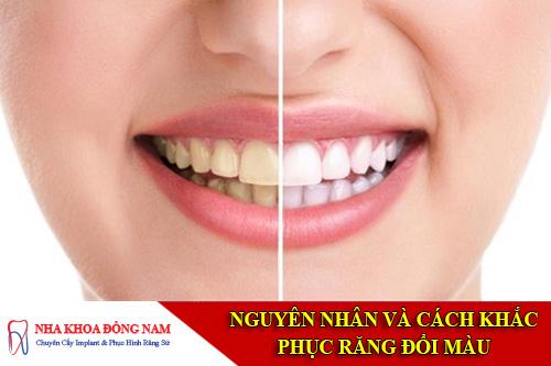 cách khắc phục răng đổi màu