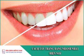 cách tẩy trắng răng nhanh nhất hiện nay