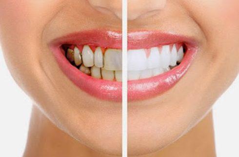Cách tẩy trắng răng nhanh nhất hiện nay 2