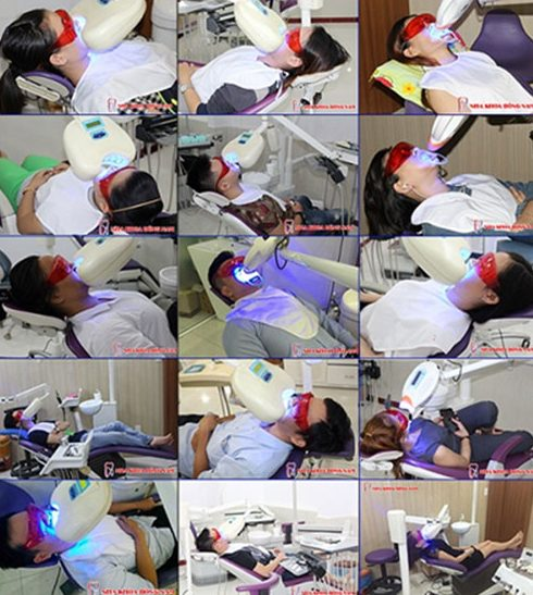 Cách tẩy trắng răng nhanh nhất hiện nay 3