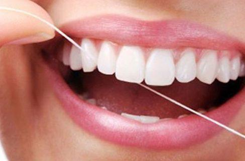 Cách làm trắng răng tại nhà chỉ 7 ngày 3