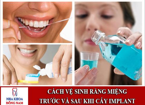 Cách vệ sinh răng miệng trước và sau khi cấy implant