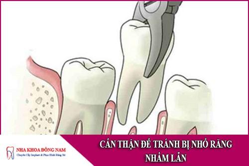 cẩn thận để tránh bị nhổ răng nhầm lẫn