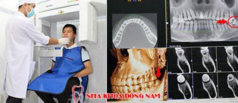 Cẩn thận để tránh nhổ răng nhầm lẩn 3