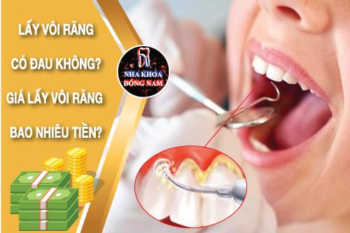 cạo vôi răng có đau không giá bao nhiêu tiền
