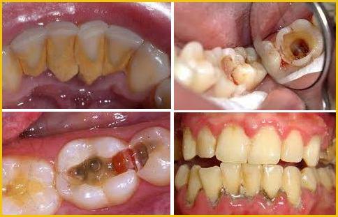 cạo vôi răng sẽ làm hư răng 1