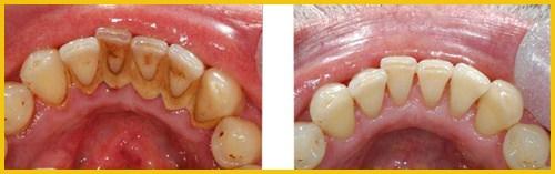 cạo vôi răng sẽ làm hư răng 2