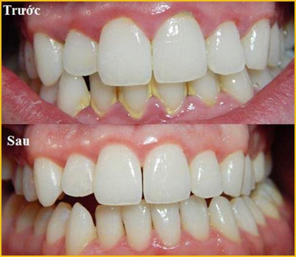 cạo vôi răng sẽ làm hư răng 3