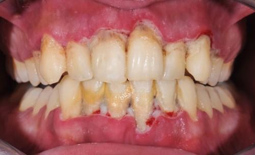 vôi răng để lâu ngày