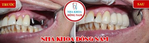 cấy ghép 2 răng imlant gắn 3 răng