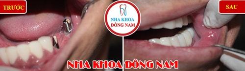 cấy ghép 2 răng implant gắn 3 răng 1