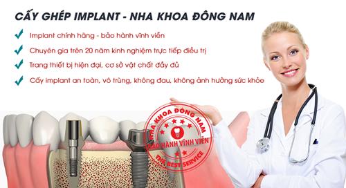 Cấy ghép Implant Hàn Quốc giá bao nhiêu 2
