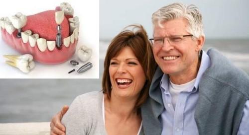 cấy ghép implant pháp giá bao nhiêu hiện nay 5